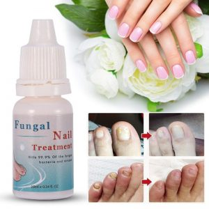 10ML Fungal Nail Treatment Essence Nail and Foot Whitening Toe Nail Fungus Removal Feet Care Nail Gel for Onychomycosis TSLM2